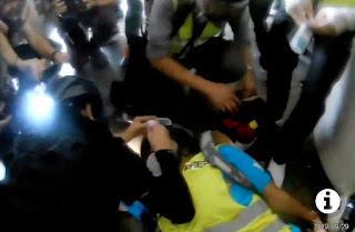 Tertembak Peluru Karet, Mata Jurnalis Indonesia Veby Mega Dilaporkan Buta