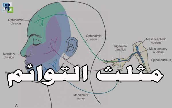 عصب مثلث التوائم - سلسلة الأعصاب في طب الأسنان