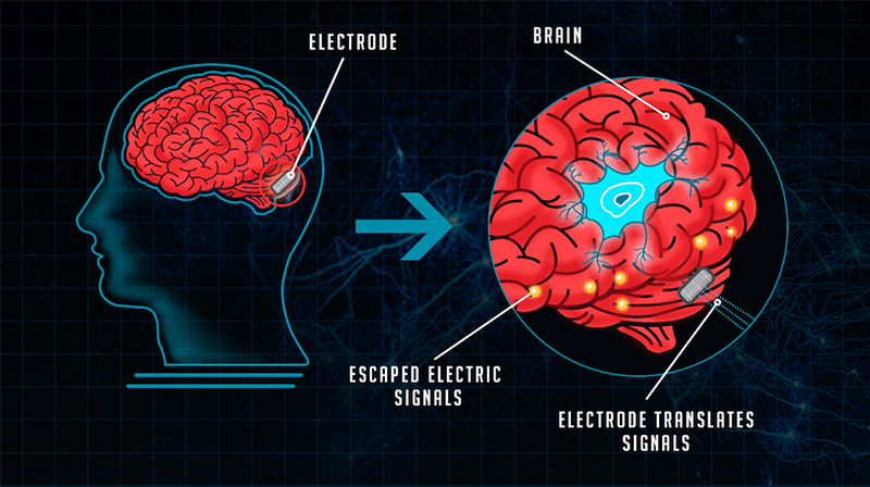 The evolution of brain-computer interfaces (infographic)