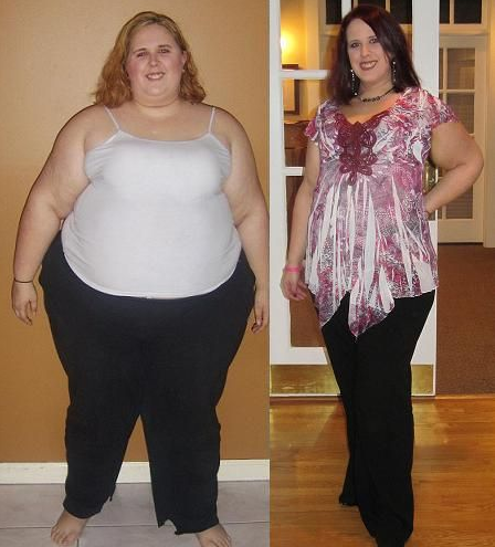 Weight Loss Programs, Which Is Best For You?
