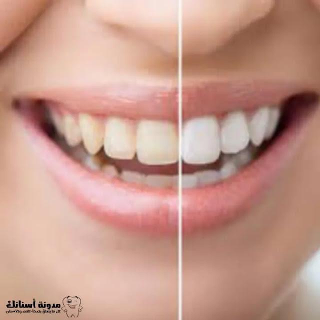 8 طرق طبيعية للتخلص من اصفرار الأسنان.