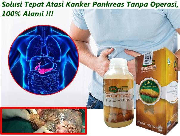 Cara Mengobati Kanker Pankreas Tanpa Operasi, 100% Alami ...