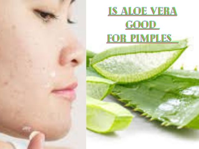 Is Aloe Vera Good For Pimples