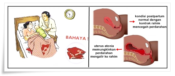 Cara Mengatasi Perdarahan Post Partum