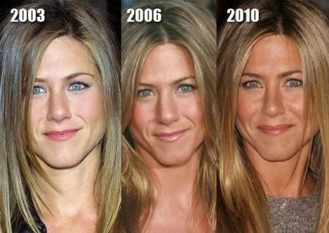Jennifer Aniston Plastic Surgery Nose Job, Breast Implants ...