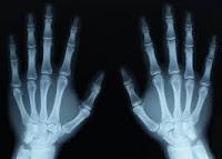 الأشعة السينية ( أشعة X ) (أشعة رونتجن)