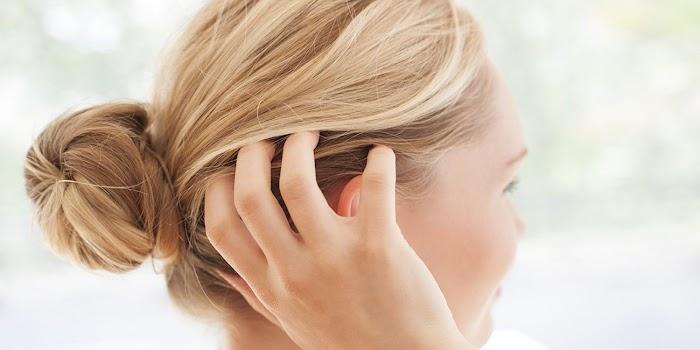 Saç Derisi Kaşıntısı Nasıl Geçer?