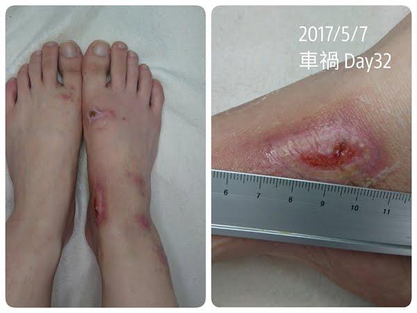 【車禍日記】傷口養護心得全紀錄,還我一雙漂亮美腿!〝結束更新〞