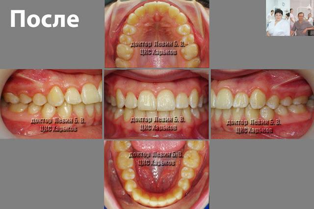 пять фото пациента в разных ракурсах после ортодонтического лечения