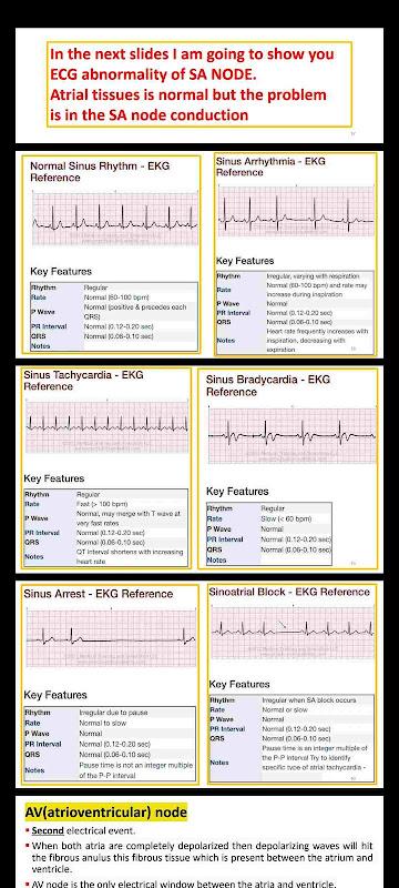ECG from A to Z شرح رسم القلب