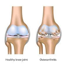 Cara untuk Menangani Osteoarthritis