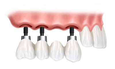 Bolehkah Gigi Implant dalam Islam