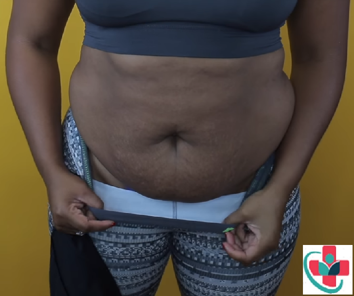 Weight loss - cover