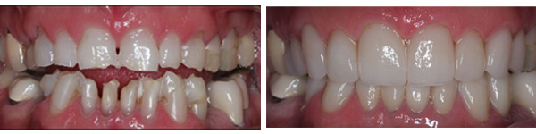 before after photo of full mouth rehabilitation done at jamnagar dental clinic