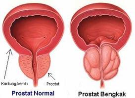 Jurnal Company Profile: Kanker Prostat