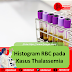 Histogram RBC pada Kasus Thalassemia