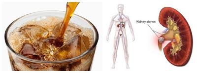 Пиво и кофе лучше других напитков защищает почки от камней