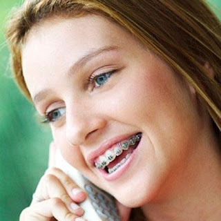 Niềng răng cho người lớn tại cơ sở nha khoa nào?