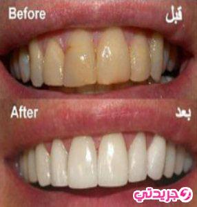 القرنفل لأسنان ناصعة البياض من أول استعمال