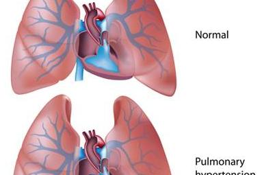 Diagnosis Hipertensi Pulmonal