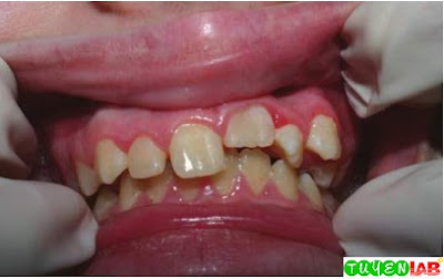 Traumatic dental injury resulting in intrusion of the tooth into the socket.