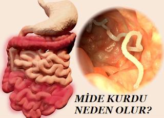 Mide Kurdu Neden Olur?