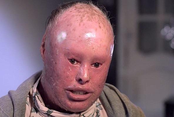 Skin Disease Harlequin Ichthyosis