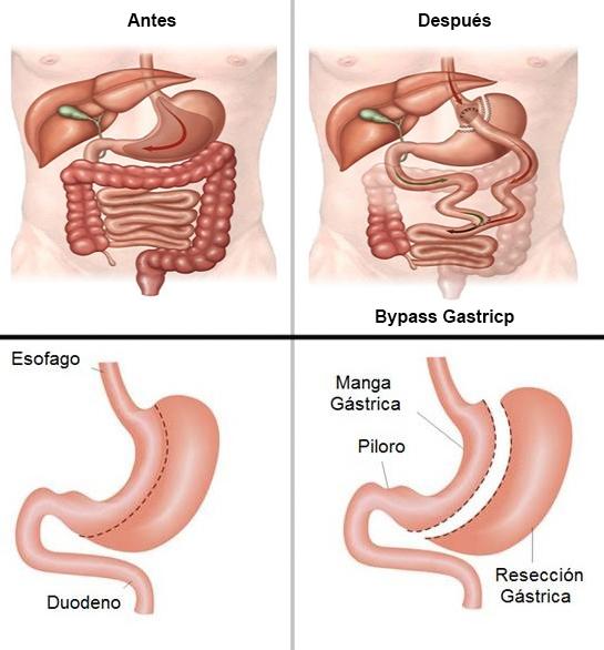dieta antes del bypass gastrico