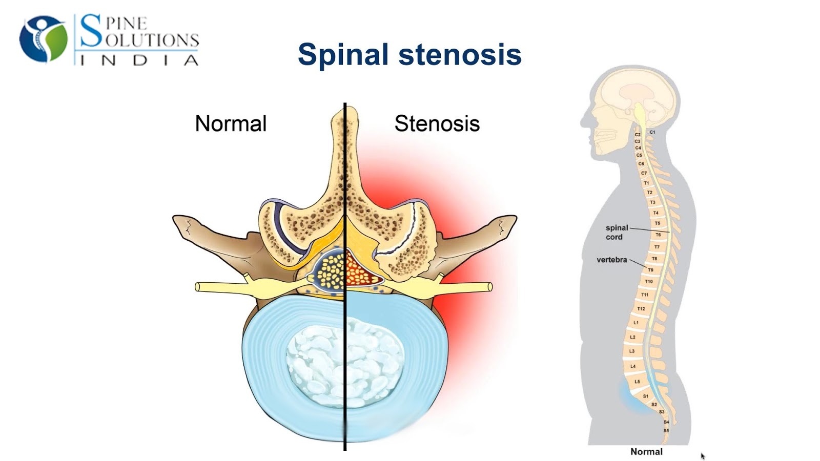 10 Symptoms of Spinal Stenosis