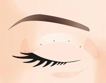 Eye Plastic Surgery in Korea, Get Rid of Sleepy Eyes