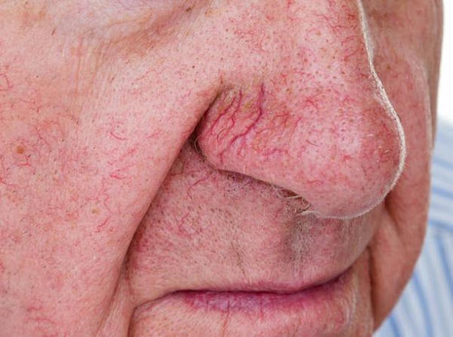 How to remove red veins on the face