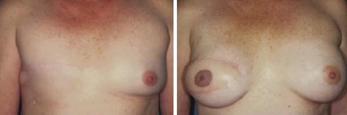 chirurgia estetica napoli
