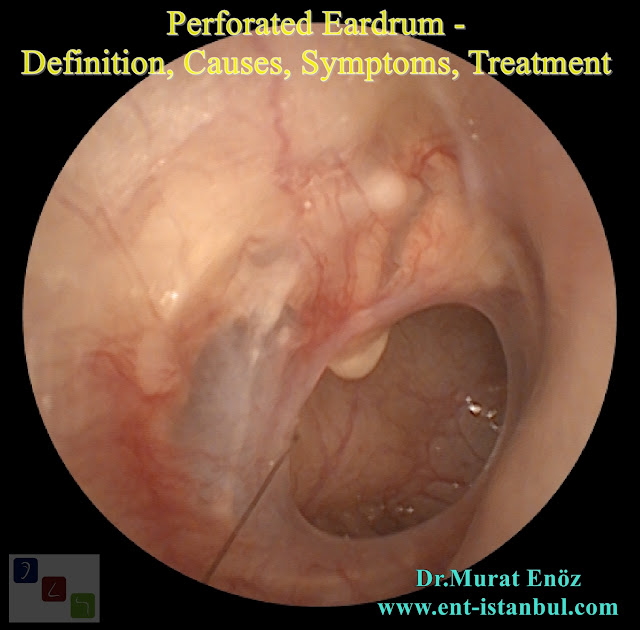 Perforated Eardrum - Definition, Causes, Symptoms, Treatment