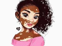 Vitiligo : Tak Berbahaya tapi Bikin Minder. Menurut Prof. Dr. dr Siti Aisah Boediardja, Sp.KK