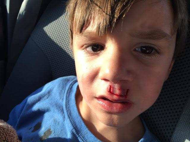 Le explotó un spinner a su hijo y publicó para dar lección