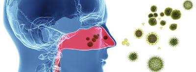 jaki nawilżacz przy alergiach wziewnych