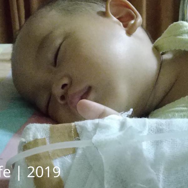 Fimosis pada bayi