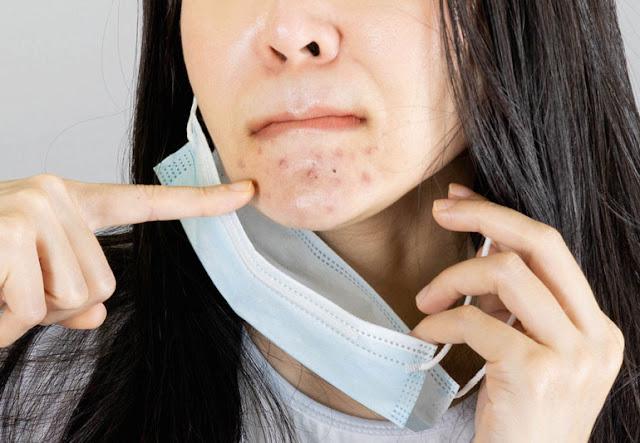 5 Tips Mencegah Maskne yang Paling Efektif