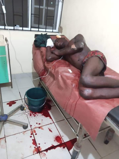 Oh no! Fulani herdsman attacks 18-year-old boy and his father over missing cow in Bayelsa state