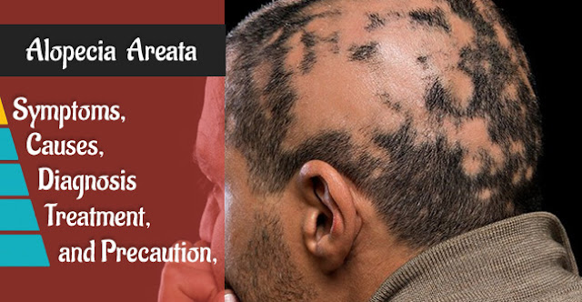 What  Is Alopecia areata?It's Cause,Symptom And Treatment of Hair Loss