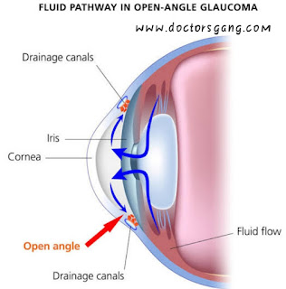 Fluid pathway in Open Angle glaucoma