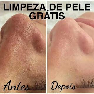 https://www.mulheressos.com/2019/08/ganhe-uma-limpeza-de-pele-e-peeling.html
