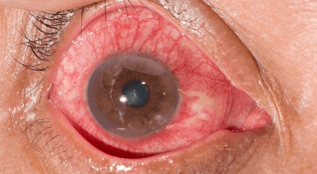 ما علاج التهاب القزحية وما اسبابها