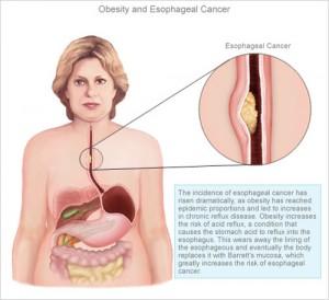 สาเหตุมะเร็งหลอดอาหาร