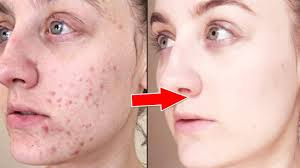 pimple problem skin care