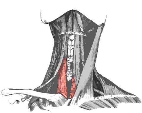 Imagen con el músculo esternotiroideo resaltado