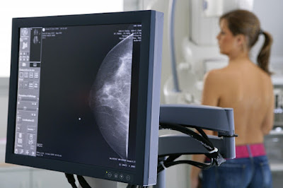 Mammography | Mammogram | Breast cancer - Keephealthyalways