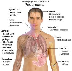 Chart Showing Pneumonia Symptoms