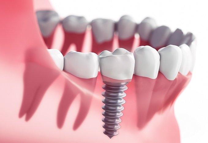 Dentist For Dental Implants