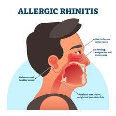 وصفة طبيعية لحالات حساسية الأنف المزمنة Natural prescription for Allergic rhinitis